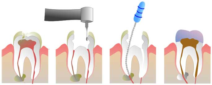 root canal therapy surrey dentist